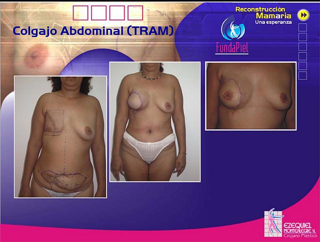 reconstruccion de seno