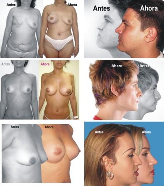 resultados cirugia plastica