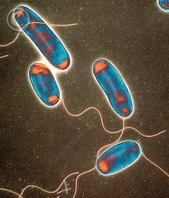 Ozono21 Legionella pneumophila